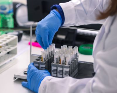 promozione esami per la celiachia a lecce offerta esami celiachia lecce