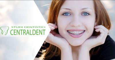dott federico fiorini offerta ortodonzia roma trova il miglior ortodontista a roma