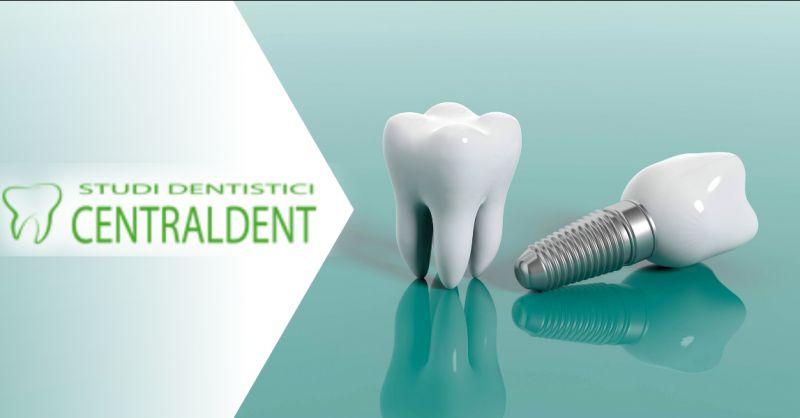 DOTT FEDERICO FIORINI Offerta implantologia Roma - occasione dentista implantologo Roma