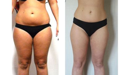 endosheres lultima frontiera del body shaping
