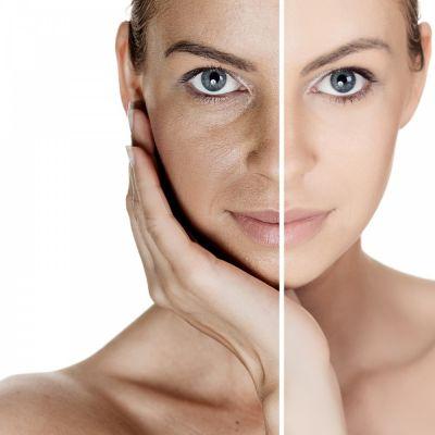 peeling viso anti macchia