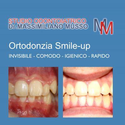 offerta mascherine ortodontiche promozione smile up studio odontoiatrico dottor musso bergamo