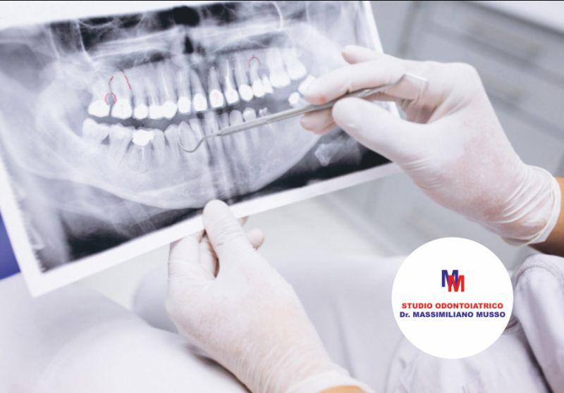 STUDIO ODONTOIATRICO DOTTOR MUSSO offerta gnatologia - promozione terapia dei dtm