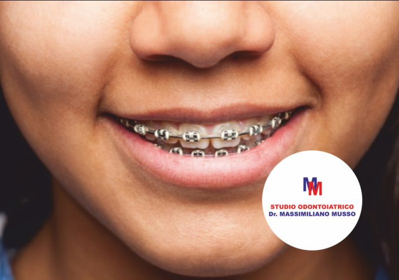 STUDIO ODONTOIATRICO DOTTOR MUSSO offerta trattamenti ortodontici - promo soluzioni ortodonzia