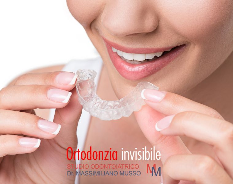 STUDIO ODONTOIATRICO MUSSO offerta smile up correzione denti rapida - apparecchio invisibile