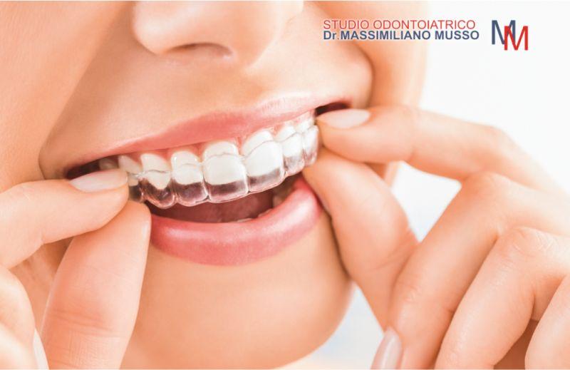 STUDIO ODONTOIATRICO MUSSO offerta ortodonzia invisibile - denti accavallati apparecchio invisibile