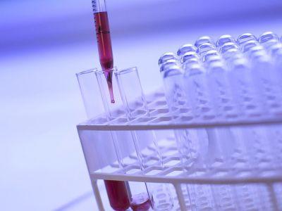 offerta laboratorio analisi aperto agosto promozione laboratorio analisi laboratorio galeno