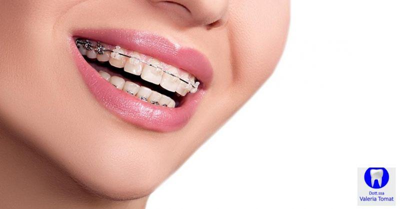 Dottoressa Valeria Tomat occasione studio dentistico - offerta visita ortodonzia Udine