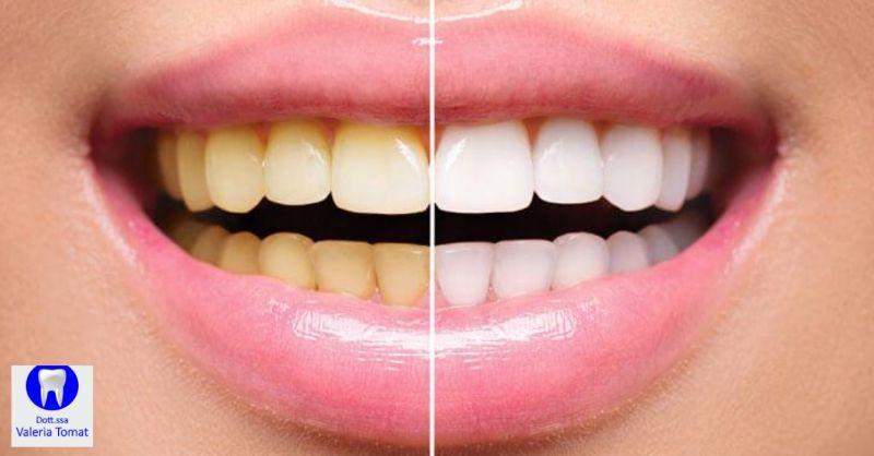 Dottoressa Valeria Tomat occasione igiene orale - offerta sbiancamento denti Udine