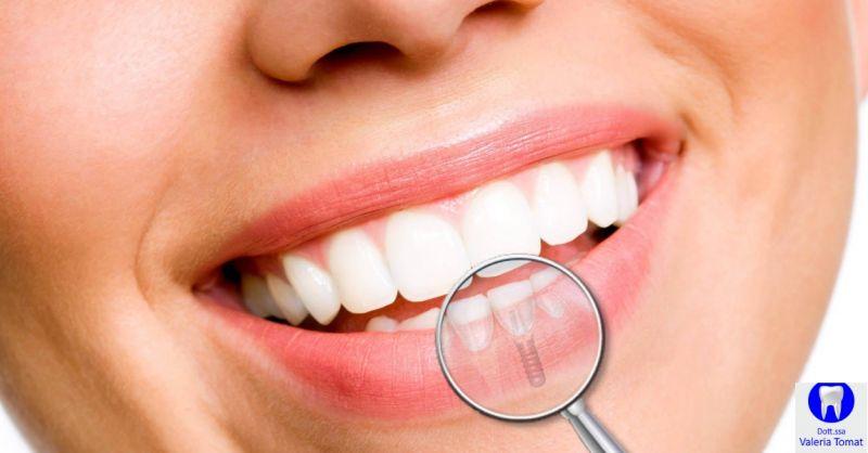 Dottoressa Valeria Tomat offerta impianti dentali - occasione implantologia dentaria Udine