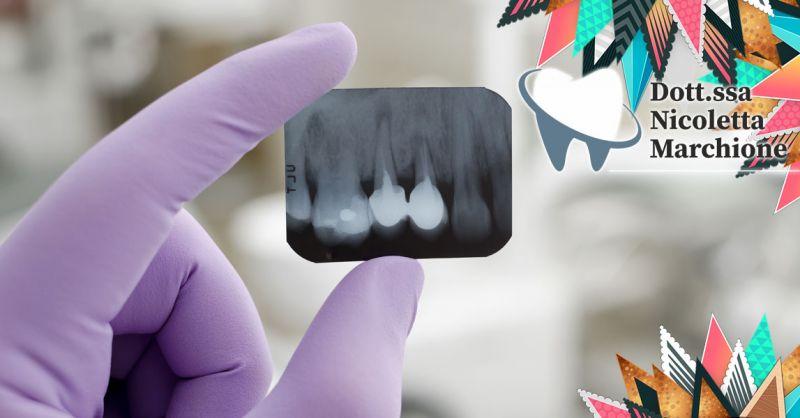 Offerta Implantologia Carico Immediato Peschiera - Occasione Impianti dentali con poco osso Verona