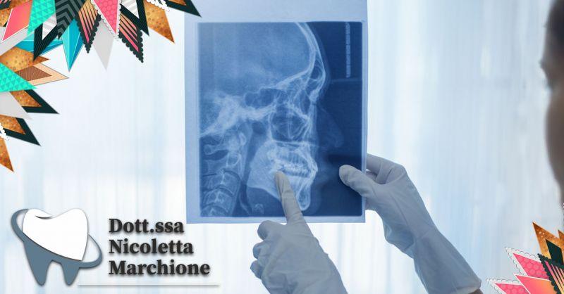 Offerta Centro Implantologia Carico Immediato Peschiera del Garda - Occasione Impianti dentali con poco osso Verona