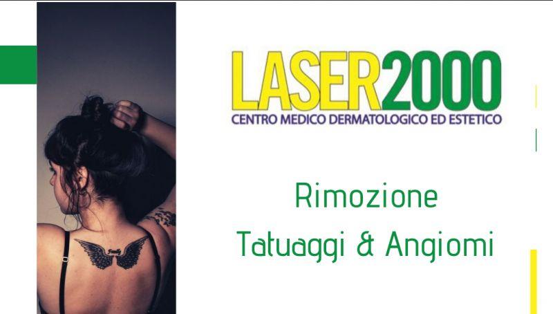 Laser 2000 offerta Rimozione tatuaggi cosenza - promozione rimozione angiomi cosenza