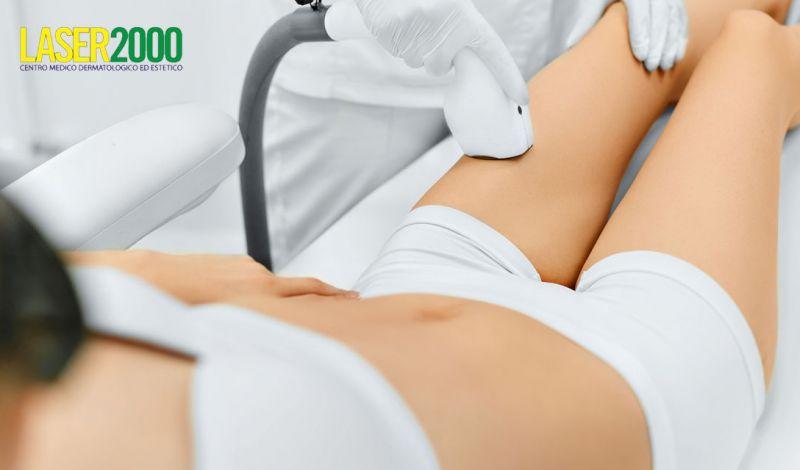 Offerta epilazione laser viso Cosenza – Promozione epilazione laser gambe Cosenza