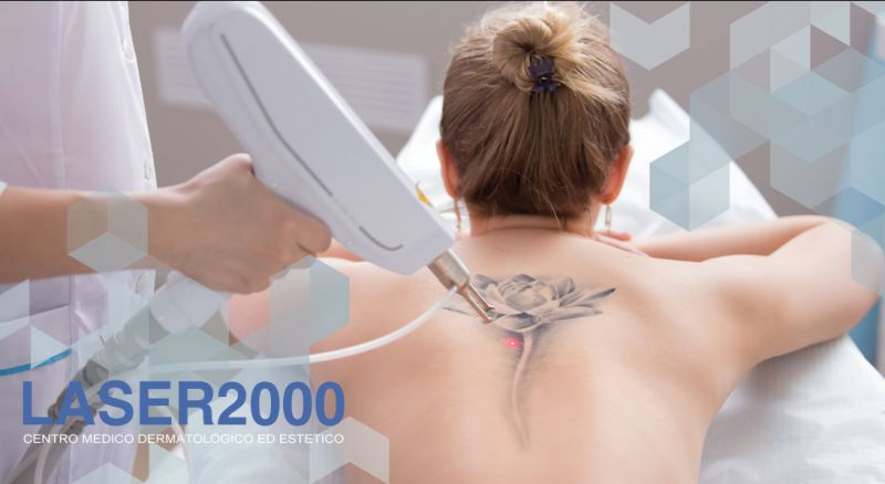 Laser 2000 - Offerta consulenza gratuita rimozione tatuaggio Cosenza – Promozione centro laser rimozione tatuaggio Cosenza