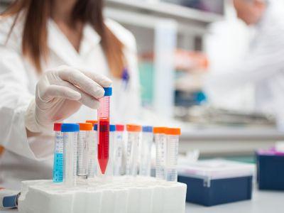 offerta analisi del sangue promozione analisi glicemia colesterolo farmacia dante